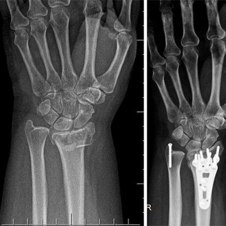 Fratura de rádio e ulna distais (Distal radius and ulna fracture)
