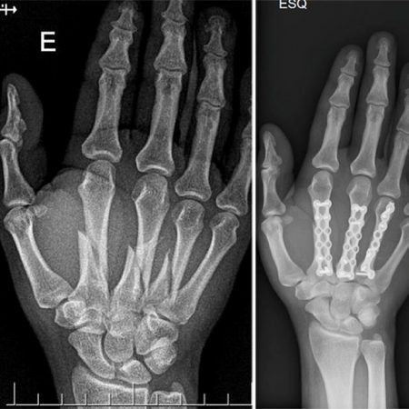 Fratura de metacarpos (Metacarpal fracture)