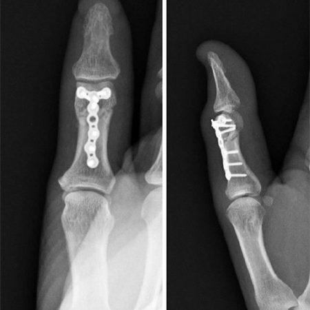 Fratura de polegar (Thumb fracture)