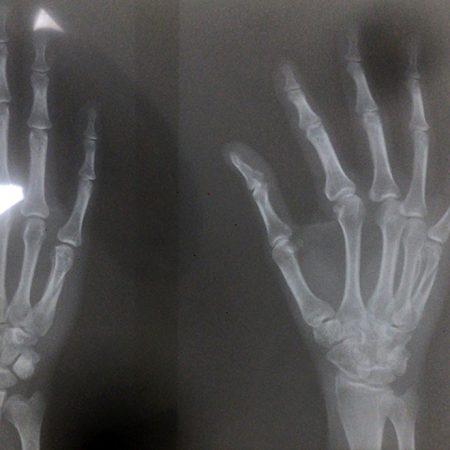Fratura de metacarpo (Metacarpal fracture)